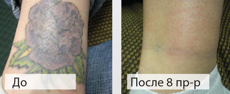 Удаление цветной татуировки в клинике лазерной косметологии «Bella-Skin Clinic»
