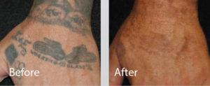 Удаление лазером татуировки на руке