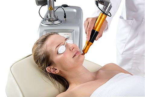Лечение пигментации в клинике лазерной косметологии Bella-Skin Clinic