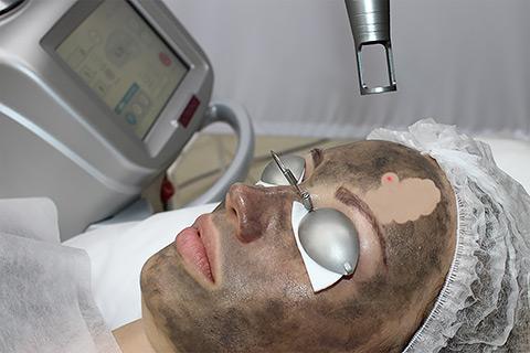 Карбоновый пилинг Spectra Peel в клинике лазерной косметологии «Bella-Skin Clinic»
