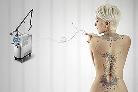 Удаление татуировок и татуажа в клинике лазерной косметологии «Bella-Skin Clinic»